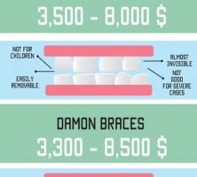 how-much-do-braces-cost-infographic