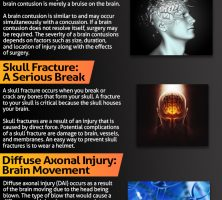 infographic-191-brain-injury
